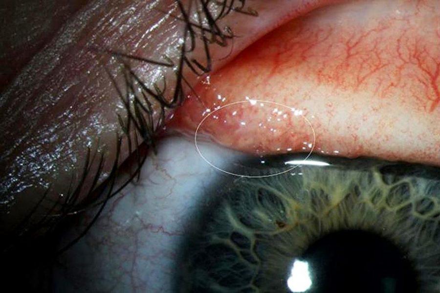 İlk Kez Bir İnsanda 'Thelazia Gulosa' Adlı Göz Parazitine Rastlandı